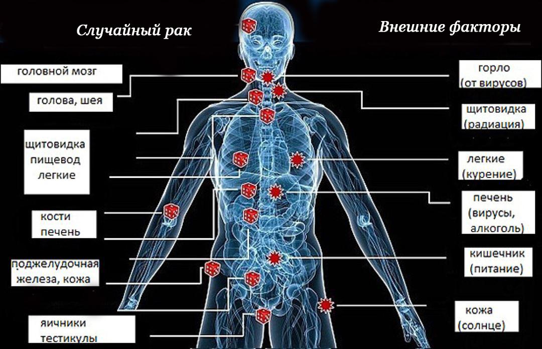 Причины появления разных видов рака
